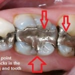 When do dental fillings need to be replaced?